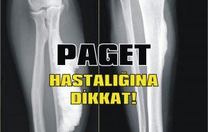 Paget hastalığına dikkat!